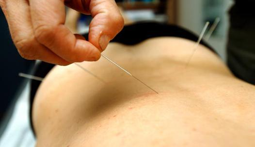 acupuncture pour le dos