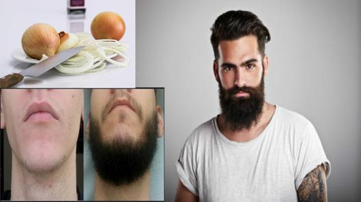 avoir de la barbe partout