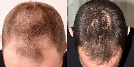 levure de bière effet sur les cheveux