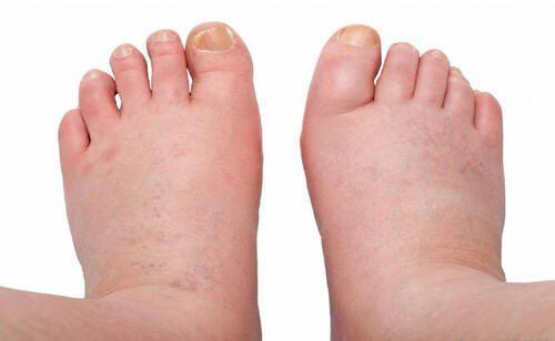 pied gonflé et douloureux
