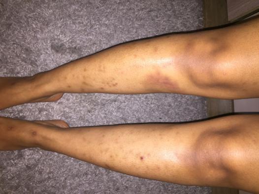 poils sous peau jambes