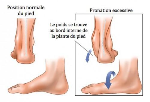 soulager douleur pied